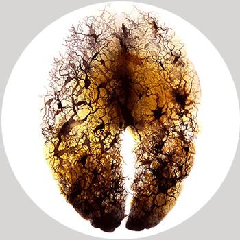 ارتباط آمیگدال و ترشح هورمون سرتونین بر اضطراب و افسردگی